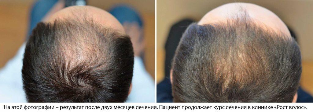 Лечение выпадения волос оставить комментарий
